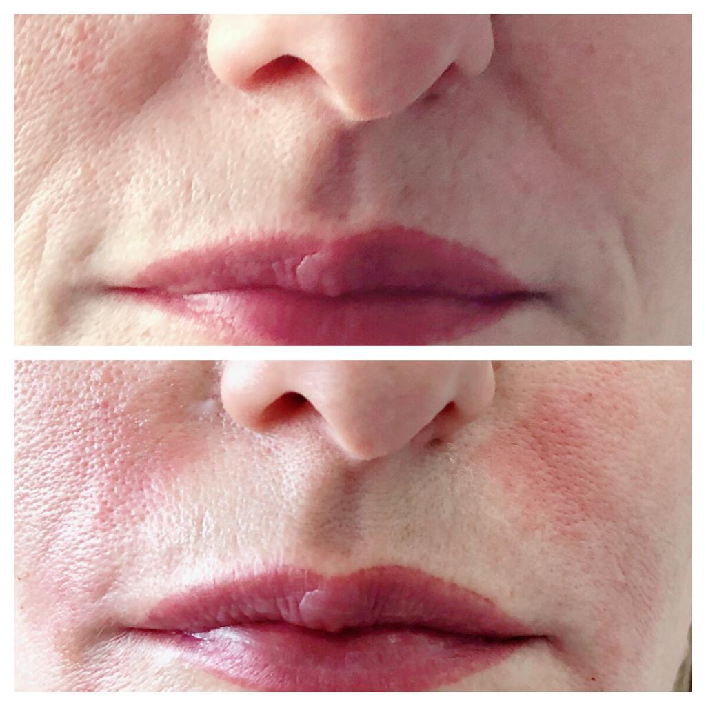Wypełnienie bruzd nosowo wargowych kwasem hialuronowym